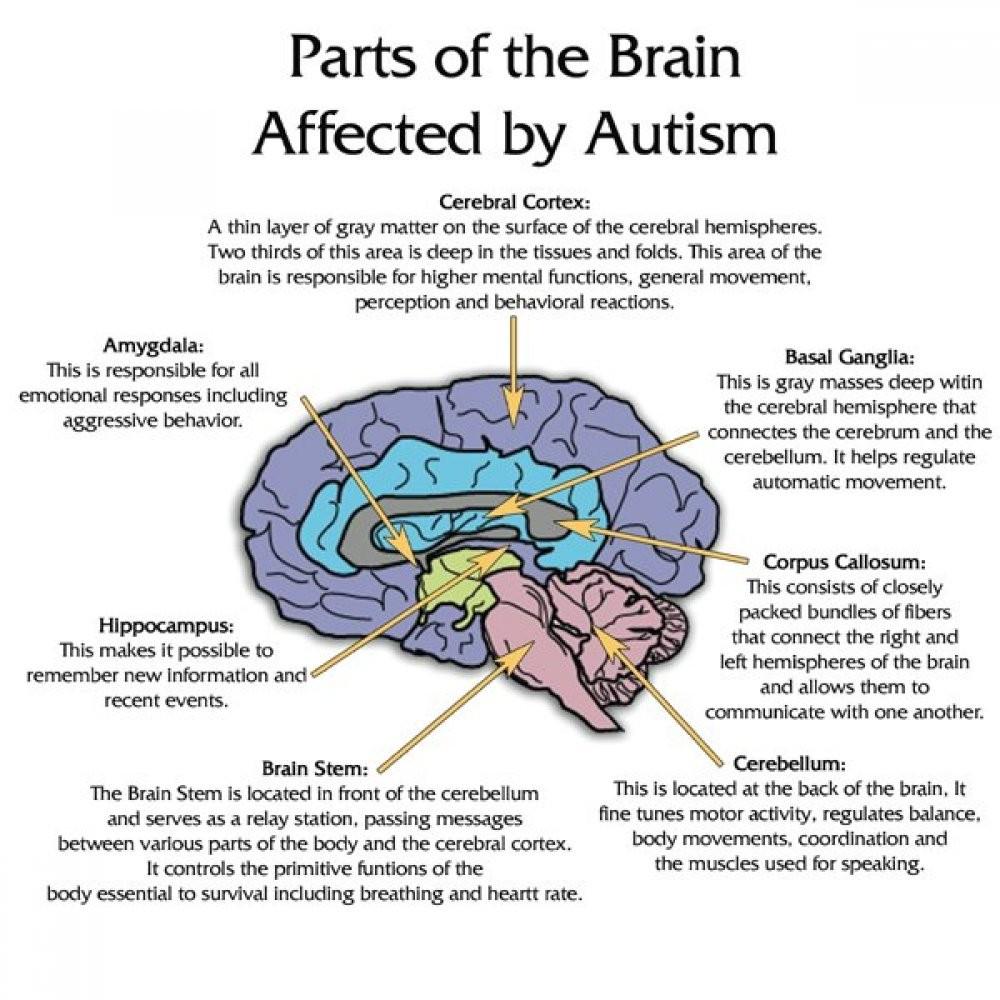 Autism-Brain-Pictures-1